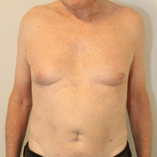 , Brystreduktion for mænd (gynækomasti) (billeder), Printzlau Privathospital, Printzlau Privathospital