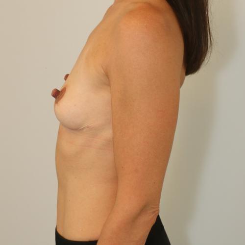 , Fjernelse af implantater (billeder), Printzlau Privathospital, Printzlau Privathospital