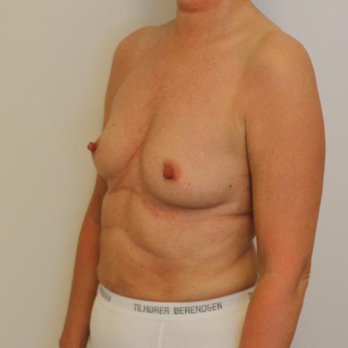 bfo før efter billeder, BFO med implantater (billeder), Printzlau Privathospital, Printzlau Privathospital
